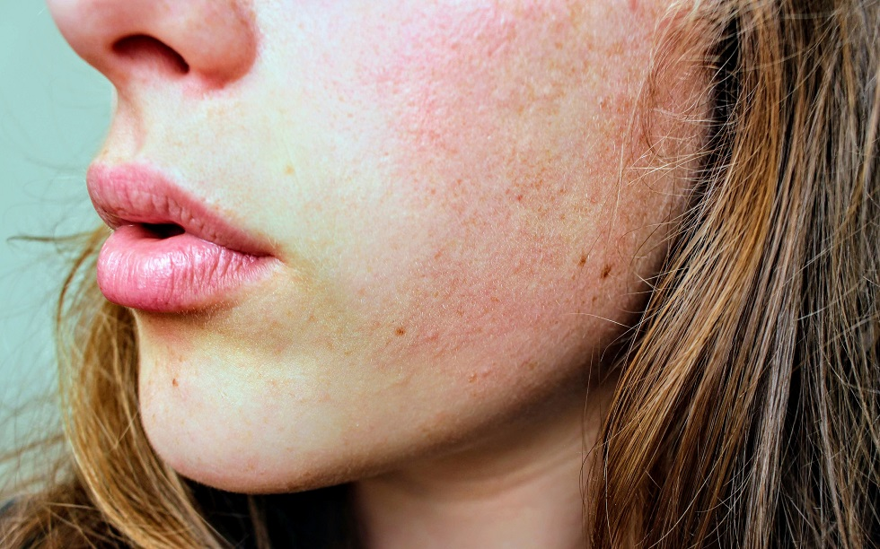 4 Signs That You May Need To See A Dermatologist